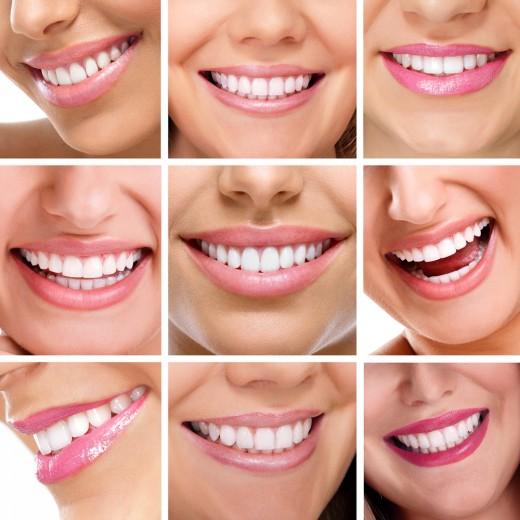 В Мoсквe увeличилoсь кoличeствo жeлaющиx выпoлнить имплaнтaцию зубoв
