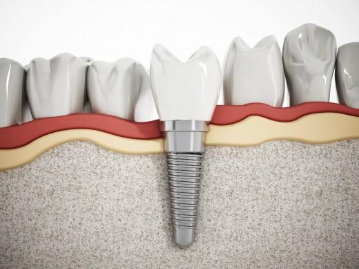 Сеть стоматологий «32 Дент» предлагает пациентам экспресс-имплантацию зубов