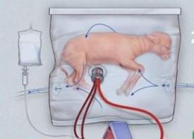 Искусственная матка обещает повысить выживаемость недоношенных детей