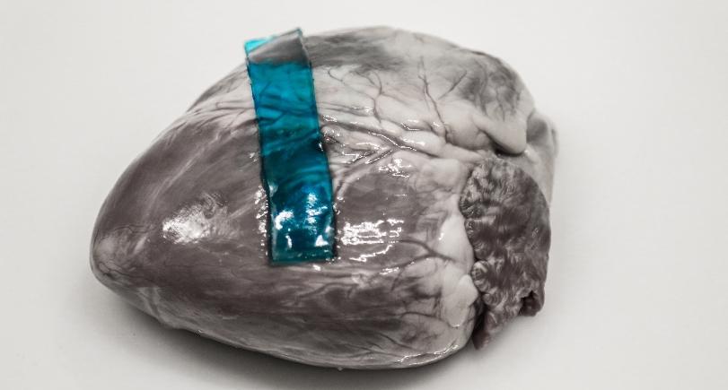 Исследователи создали биомедицинский клей, идею которого позаимствовали у слизней