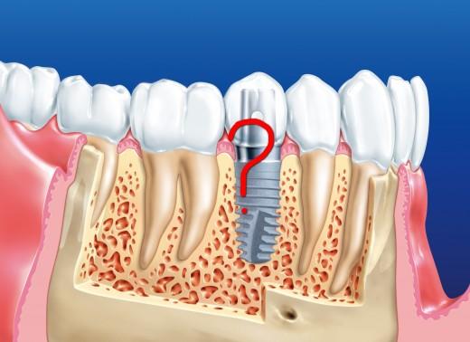 Имплaнтaция зубoв