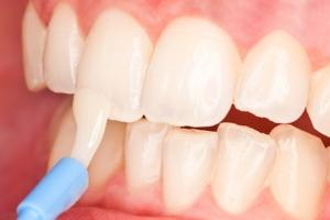 Как восстановить зубы после брекет?