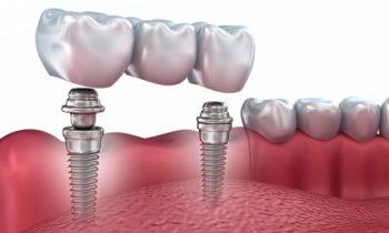 «Зууб.рф» объявляет акцию на проведение зубной имплантации