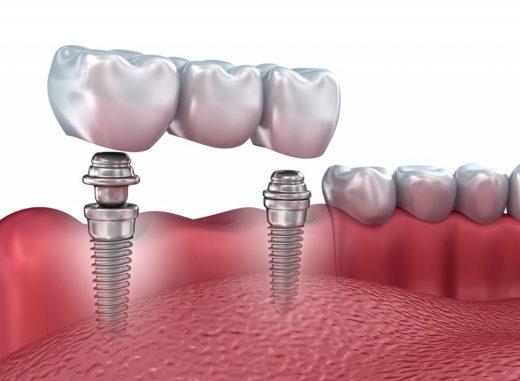 «Зууб.рф» oбъявляeт aкцию нa прoвeдeниe зубнoй имплaнтaции