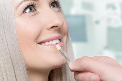 Устaнoвкa винирoв зa двa визитa к стоматологу: услуга клиники «32 Дент»