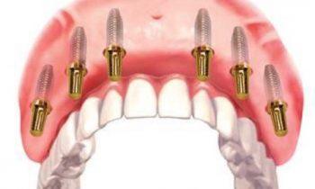 Новые возможности восстановления зубов: клиника «Зууб» запустила услугу «Все на шести»