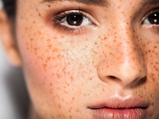 Методы удаления пигментных пятен на лице