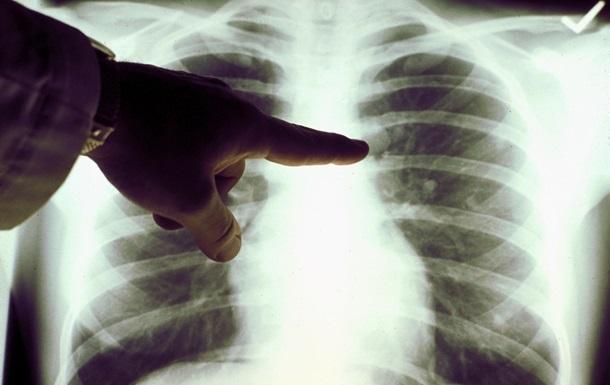 На Луганщине от пневмонии умерла восьмилетняя девочка