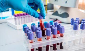 Генотипы Гепатита С и схемы лечения