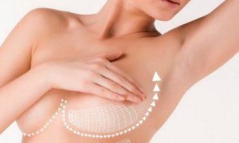 Когда нужно делать подтяжку груди